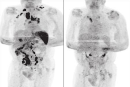 Coronavirus triggered 'anti-tumour response' in 61-year-old patient: Study