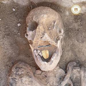 Archaeologists in Egypt find a mummy with a golden tongue